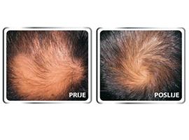 serum za rast kose